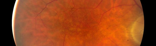 Macular Degeneration Long Term Disability