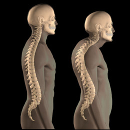 Osteoporosis disability lawyer