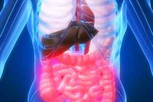 Irritable Bowel Syndrome long term disability