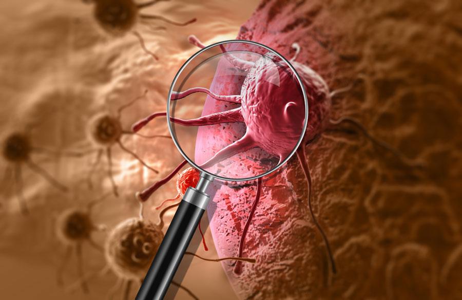 UNUM Cancer Long Term Disability Claim