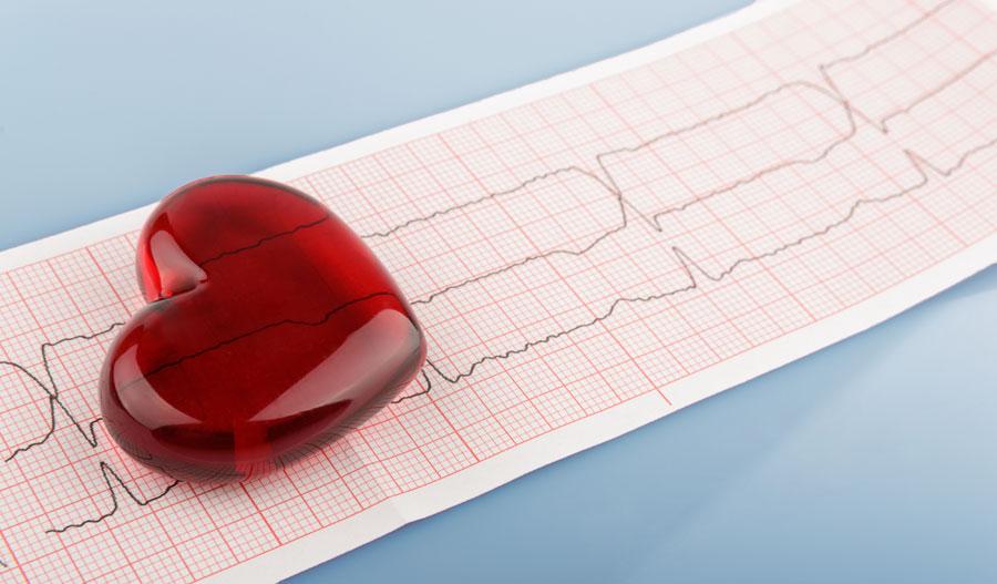 Cardiovascular Condition Social Security Claims