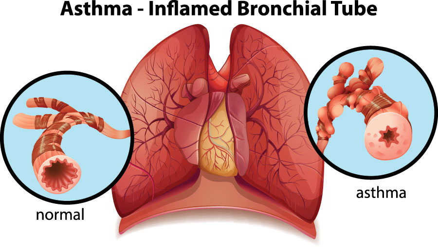 Asthma-Long-Term-Disability-Claims-Attorney
