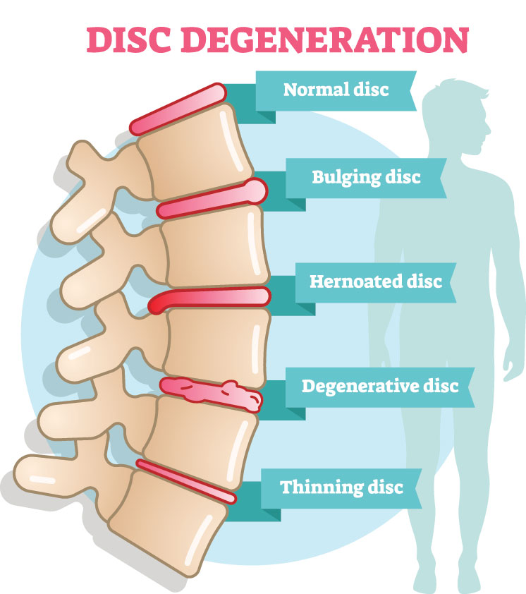 Low Back Pain or Lumbar Spine Disorder Disability Benefits